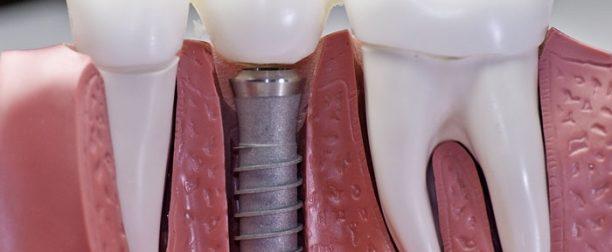 Имплантация зубов в Семее