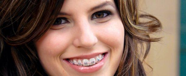 Ортодонтия в Семее