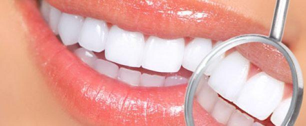 Отбеливание зубов в Семее