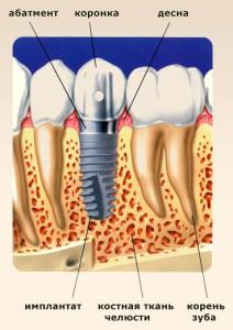 зубной имлантат